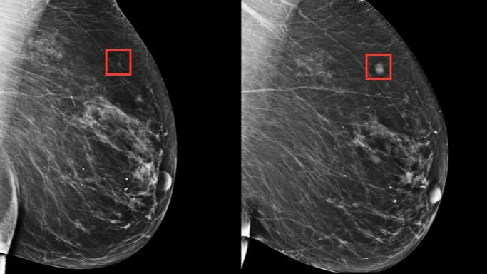 Dépistage du Cancer du sein : intelligence artificielle contre imagerie médicale